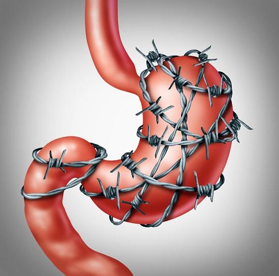 demasiado estrés causa problemas digestivos
