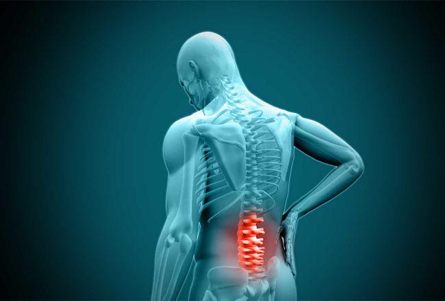 Dolor en las articulaciones causado por la enfermedad de lyme