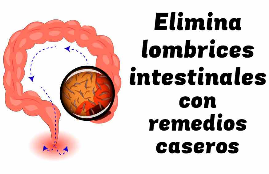 Eliminar las lombrices intestinales con remedios naturales