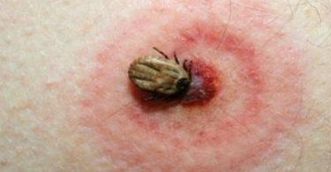 picadura de garrapata enfermedad de lyme