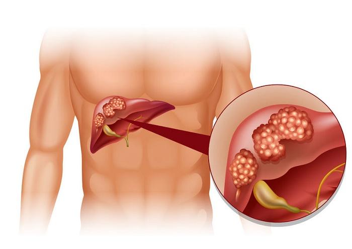 jugo medicinal para el hígado enfermo