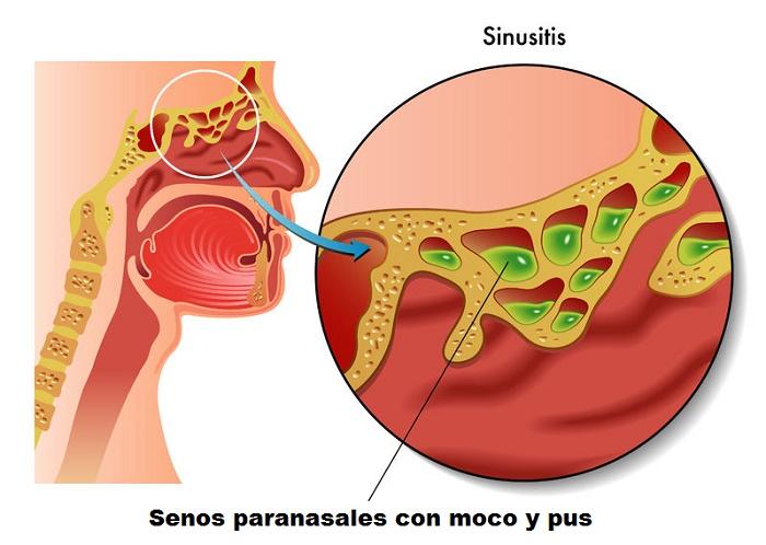 infección sinusal ilustración