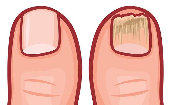 tu cuerpo grita ayuda por uñas quebradizas