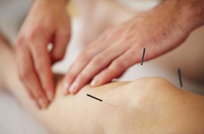 acupuntura como terapia