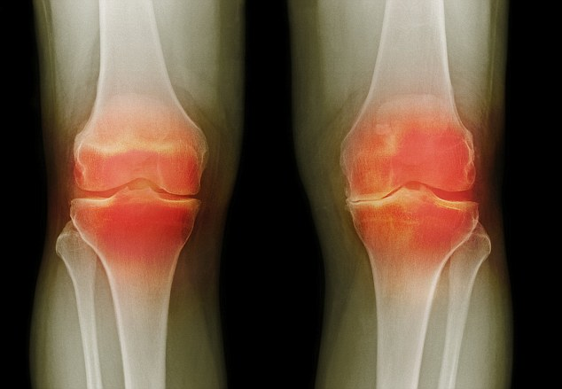 desgaste de rodillas
