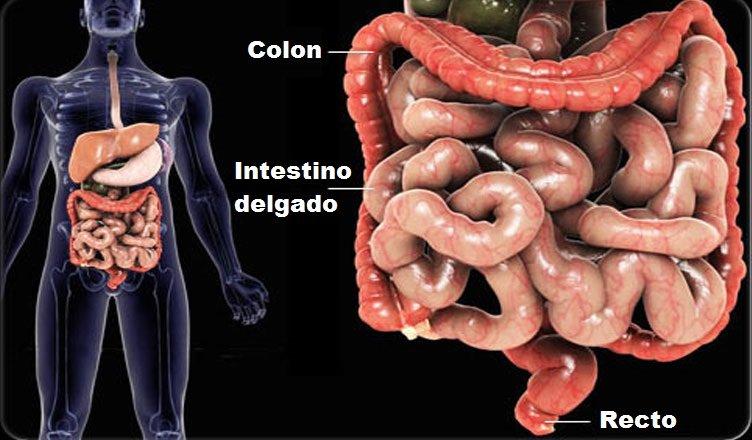 intestino enfermo