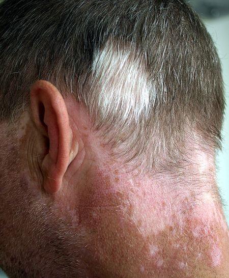 pelo canoso por vitiligo