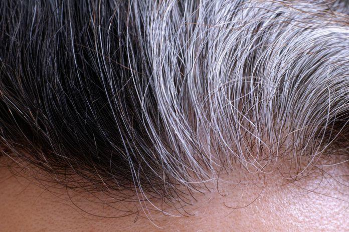 pelo canoso