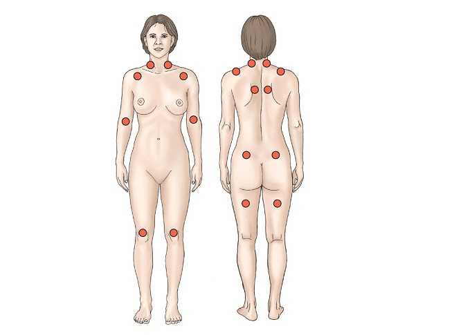 puntos gatillo signos de la fibromialgia