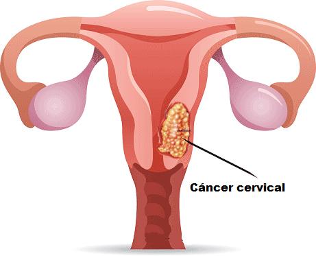 cáncer cervical ilustración