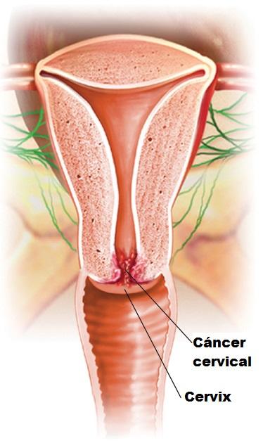 cáncer cervical y cervix