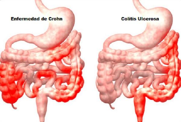 enfermedad de Crohn te está haciendo engordar