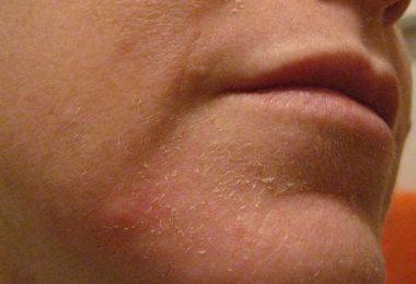 resequedad en la piel producto de la ducha