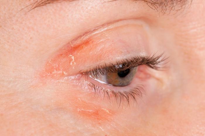 Irritación en los ojos por usar maquillaje vencido