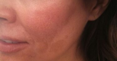 Mujer con manchas en su rostro