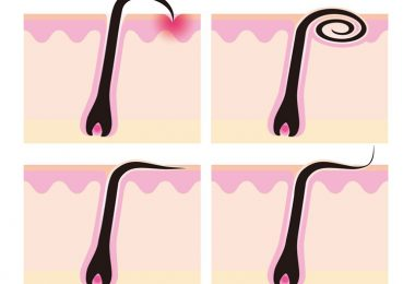 Soluciones naturales ara tratar le pelo enquistado