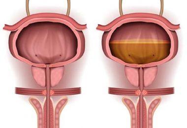 Retención urinaria y los problemas de salud que puede ocasionar