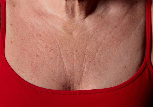 Cómo borrar las arrugas en el pecho