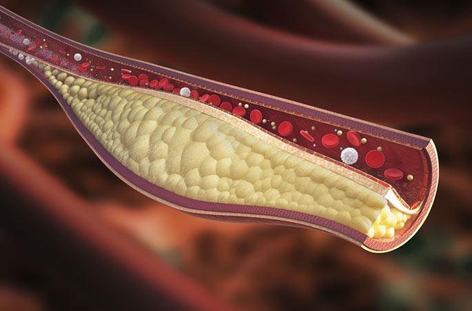 colesterol ldl o colesterol malo en la sangre