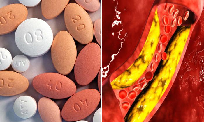9 habitos que reducen el colesterol sin estatinas peligrosas With 9 habitos que reducen el colesterol sin estatinas peligrosas