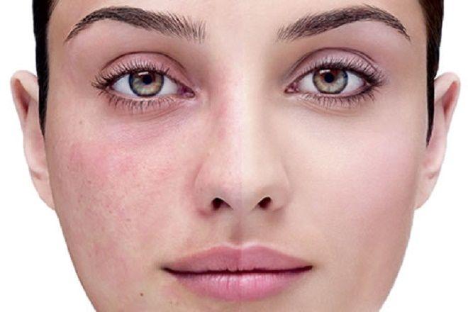 Mujer que muestra reacción alérgica en su rostro