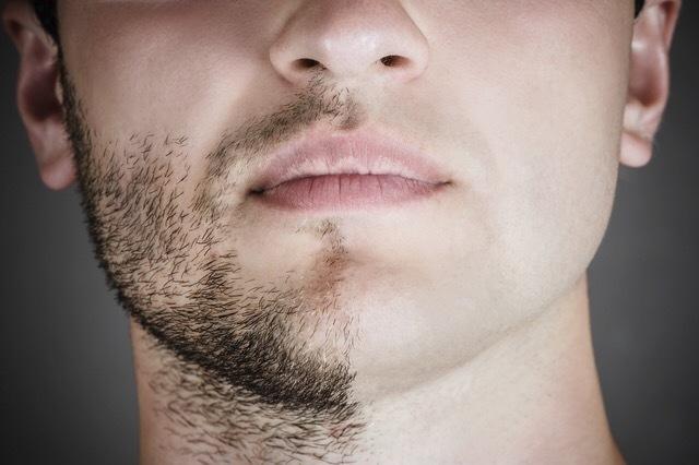 Escoger el medio de la alopecia