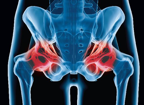 gráfico del desgaste de cadera
