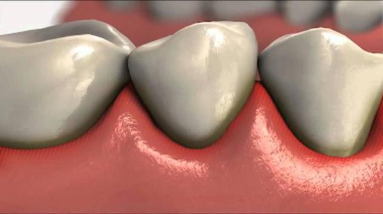 gingivitis en las encias