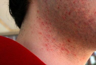 efectos de la irritación luego de rasurar la barba
