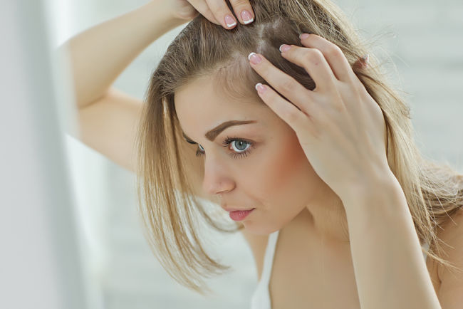 chica que padece pérdida de cabello