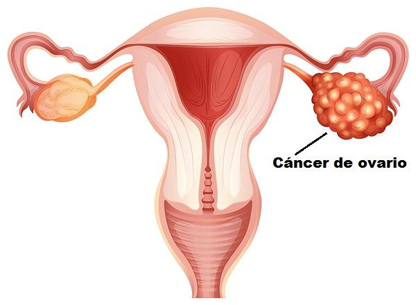 riesgo de cáncer de ovario