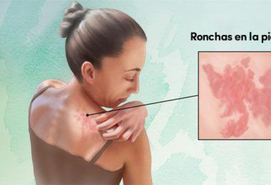 mujer con ronchas en la piel por la urticaria crónica