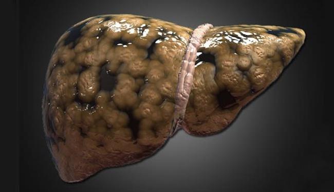 hígado con esteatosis hepatica