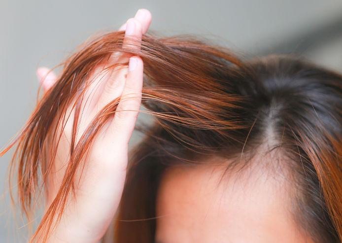 mujer que presenta la pérdida de cabello