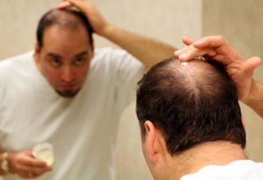 hombre que padece caída del cabello