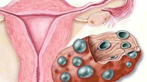 sindrome ovarios poliquisticos como bajar de peso rapido