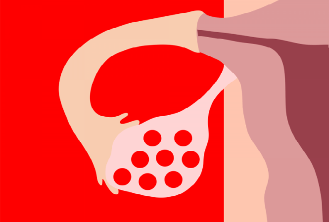Ovarios poliquisticos tratamiento para bajar de peso