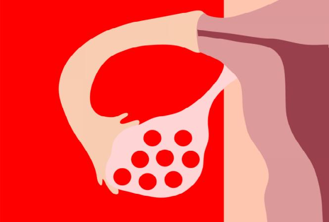 como perder peso si tengo ovarios poliquisticos
