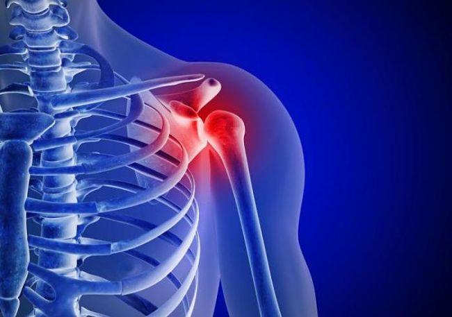 dislocación del hombro