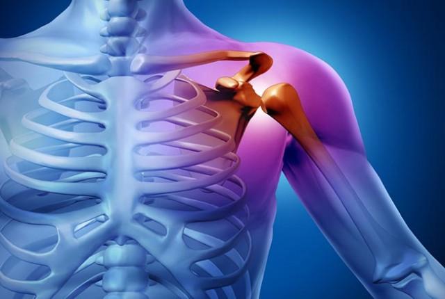 la subluxación es un dislocamiento de huesos