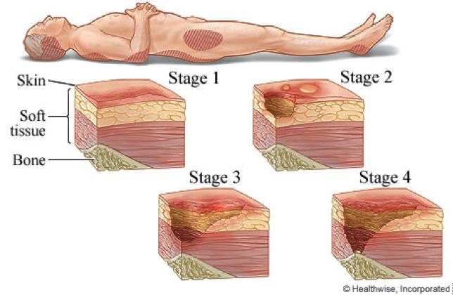 etapas de úlceras por presión