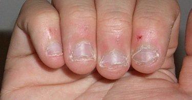 dedos con las uñas mordidas