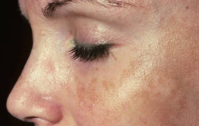 piel pigmentada en la cara de una mujer