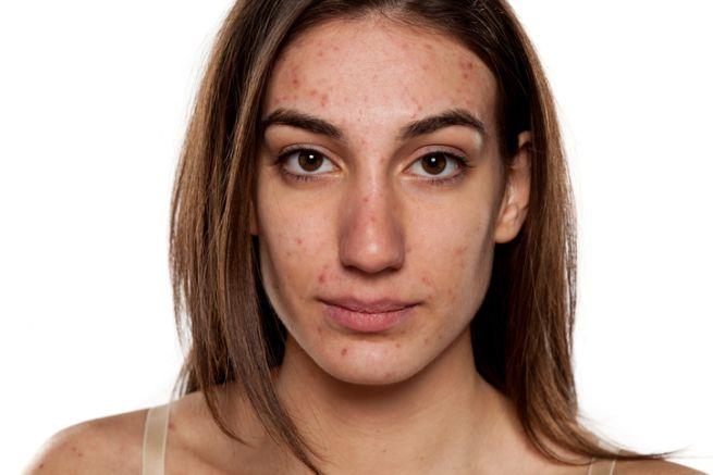 mujer con la piel de la cara con acné