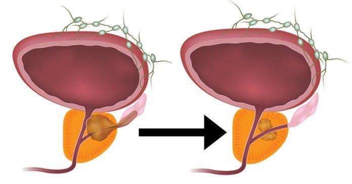 reducción de tumores y cáncer de próstata