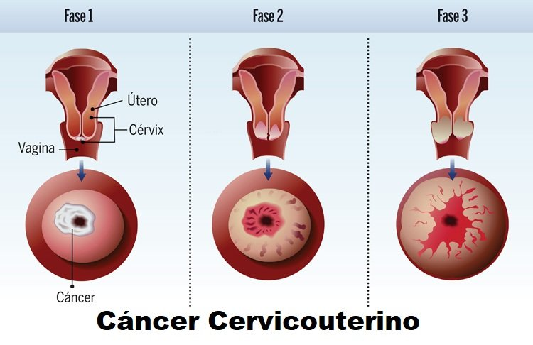 cáncer cervicouterino