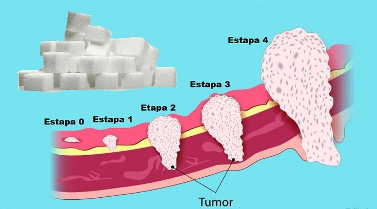 células cancerosas etapas