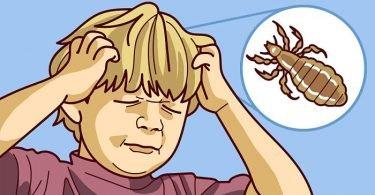 niño con piojos en la cabeza ilustración