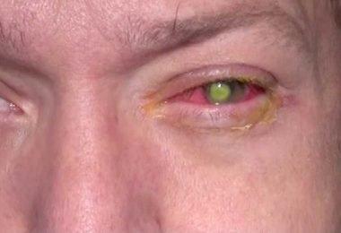 Los lentes de contacto le hicieron quedar ciego