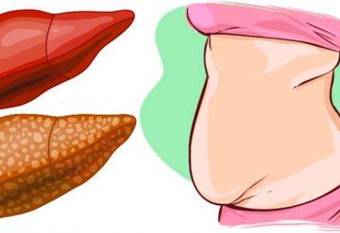 causas del sobrepeso que no están ligadas a la alimentación